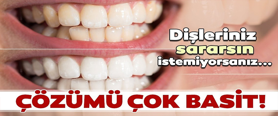 Dişleriniz sararsın istemiyorsanız çözümü çok basit!